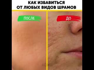 Как избавиться от любых шрамов