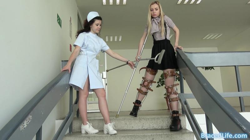 Mary Fully Braced in Leg Braces and Milwaukee Brace