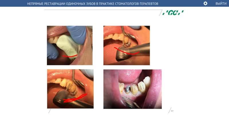 Вебинар Непрямые реставрации одиночных зубов (29.03.17)