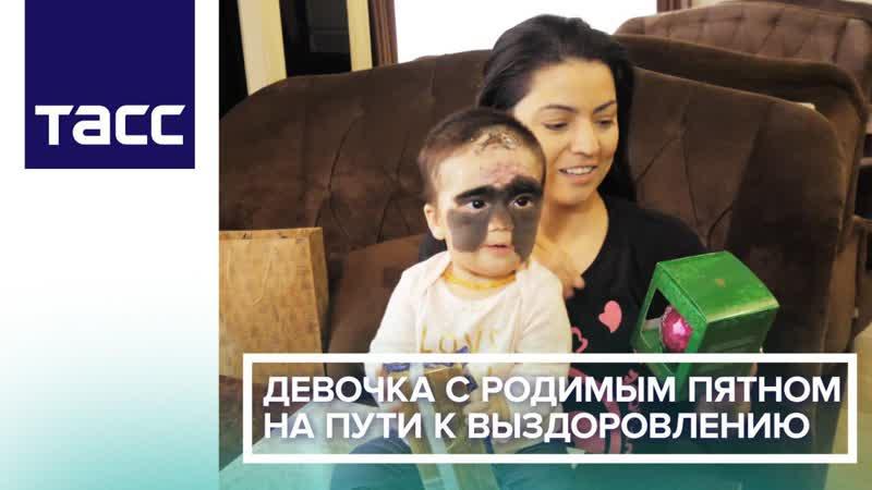 Девочка с родимым пятном на пути к выздоровлению