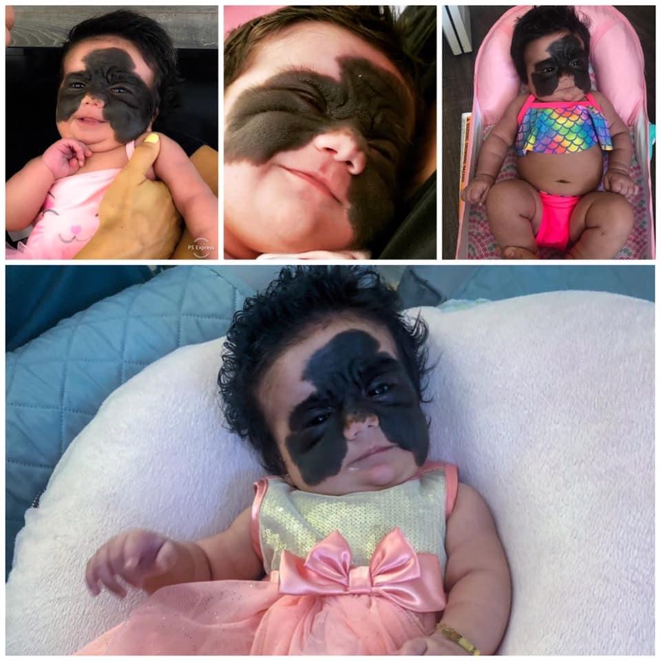 Луна Феннер — бразильская девочка с родимым пятном на все лицо