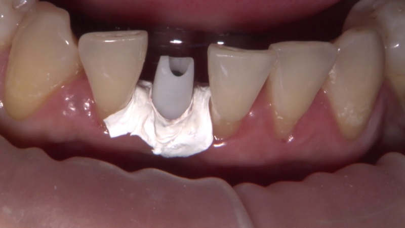 Case of the Week Dr Muresan Places Her First Hahn™ Implant