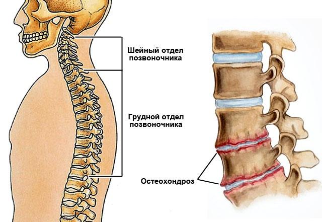 Как лечить боль в тазобедр суставе