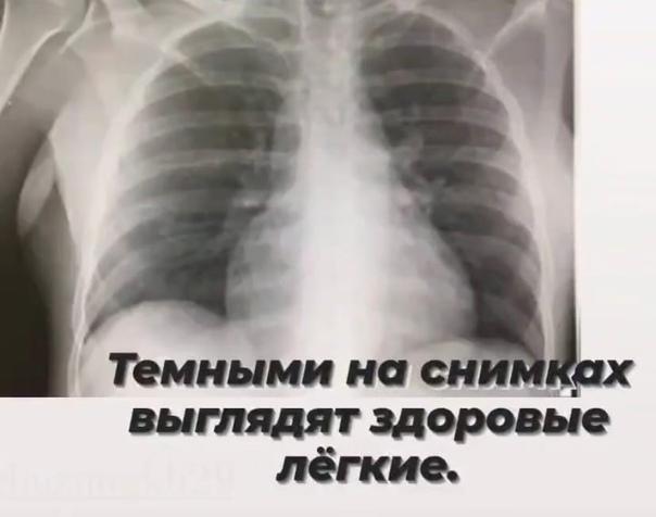 Главный врач 29 больницы Юлия Гаревская показала, ...