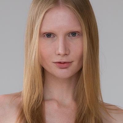 Аня Кизлик