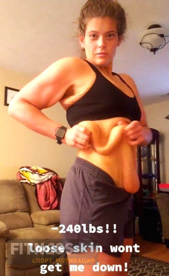 Результат экстримального похудения