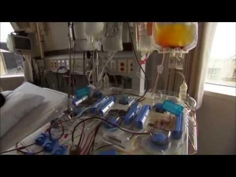 Bone Marrow Transplant Mayo Clinic
